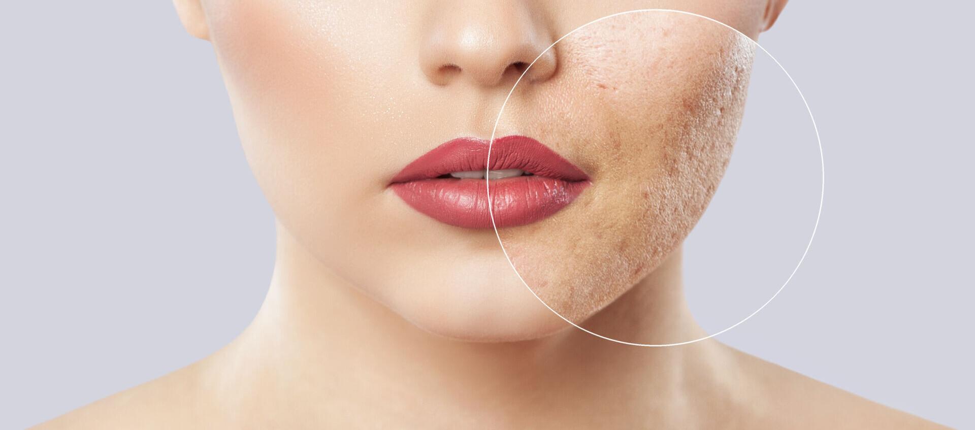 Wie schminkt man sich bei Akne-Narben? - Unreinheiten - Make-up Tipps - Make-up - Lombagine